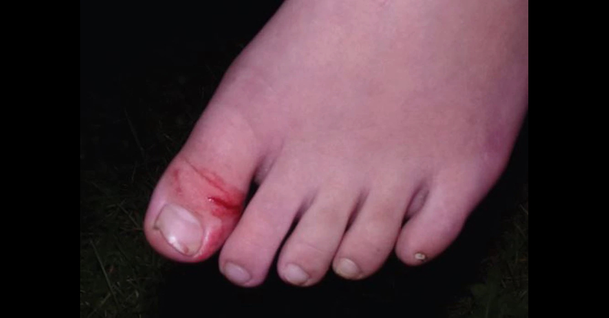 This image of the boy's injuries was released by the Berea, Ohio Police Department.